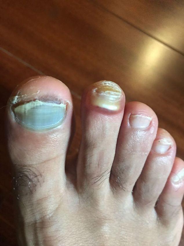 Τα πόδια του Δημήτρη μετά τον αγώνα. Ο Γιώργος Πάνος στον λογαριασμό trypo_runner στο Ιnstagram έχει μια φωτογραφία με τα αναμνηστικά του από το Σπάρταθλον κρατώντας μια χούφτα από τα νύχια ποδιών που έχει κατά καιρούς χάσει.